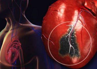 ПМГ-2021: друге засідання за напрямом лікування гострого інфаркту міокарда